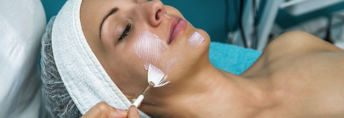 What's It Like to Have a Chemical Peel?