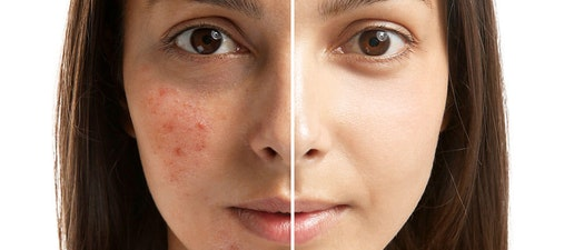 5 Cosmetic Services for Acne Reduction