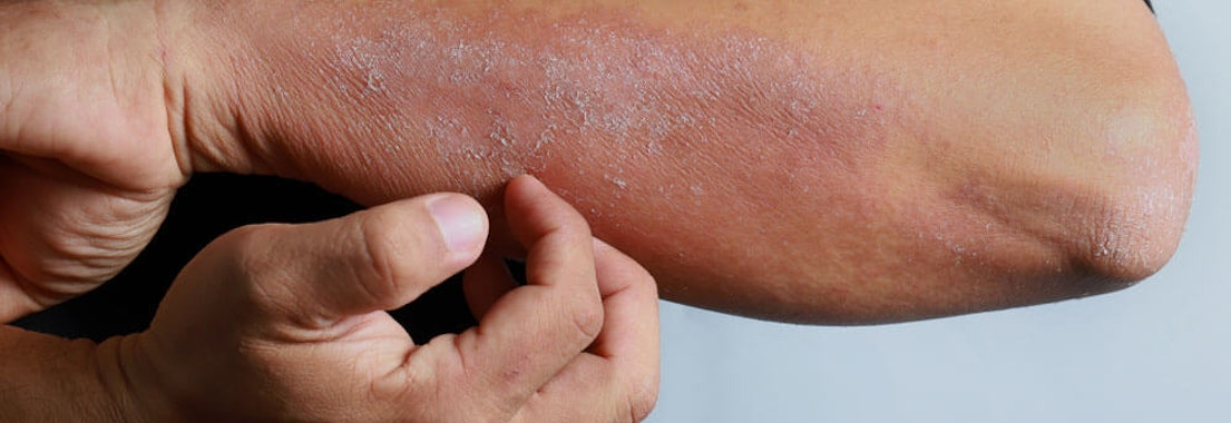 Contact Dermatitis: Symptoms and Treatment