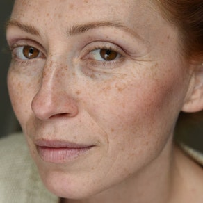Vanguard Dermatology freckle skin treatment What To Do About Freckles