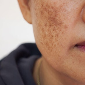 Your Treatment Options for Melasma and Brown Spots