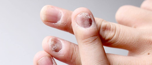 Do You Have One of These 6 Common Nail Abnormalities?