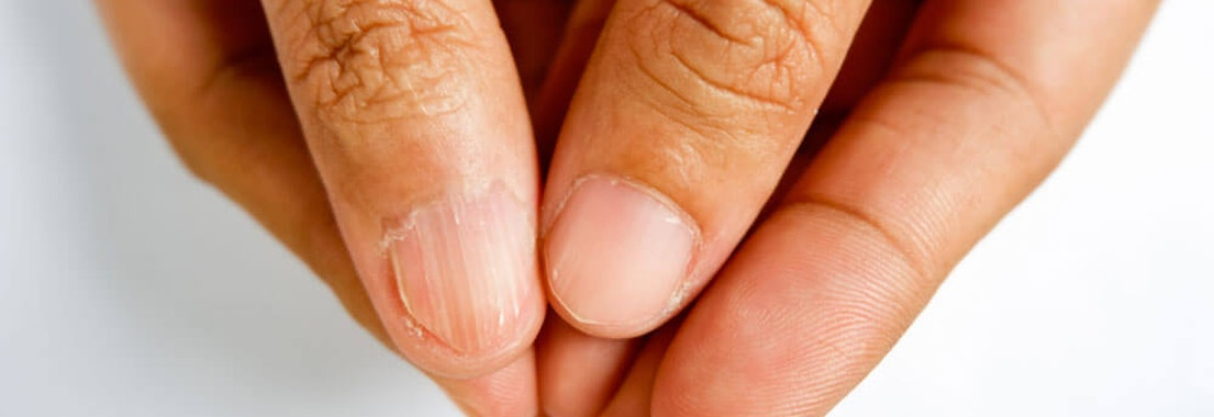 Identifying Nail Abnormalities by Nail Shape