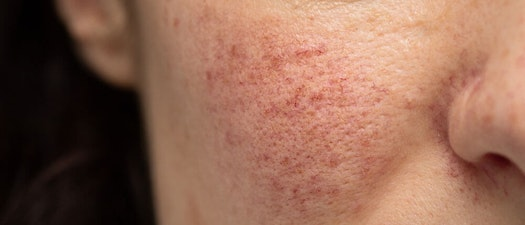 How To Tell the Difference Between Rashes and Rosacea