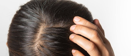 How to Check for Scalp Psoriasis