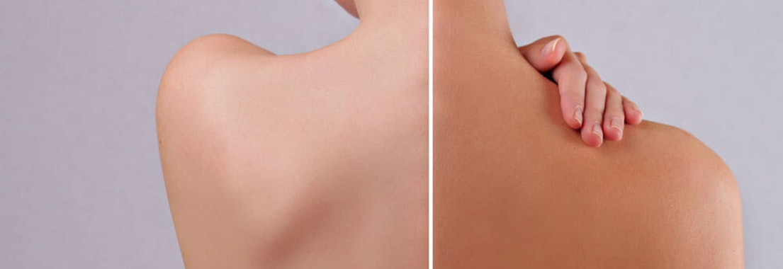 Vanguard Dermatology self-tanning results 12 Self-Tanning Tricks for Faking Healthy Color