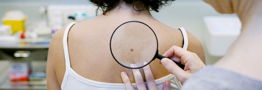 How Soon Can Screenings Detect Cancer?