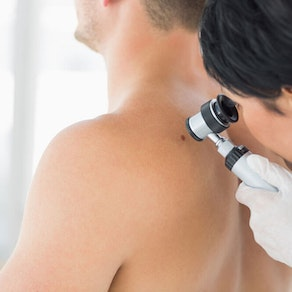 Skin Cancer Awareness Month: What Does Skin Cancer Look Like in its Early Stages?