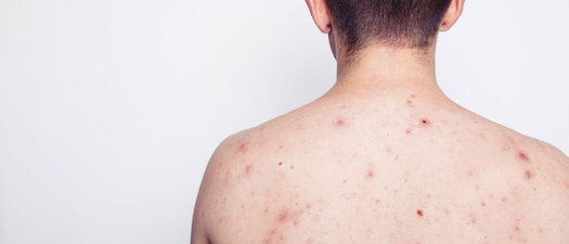 Person with acne on their back 8 Ways to Beat Body Acne