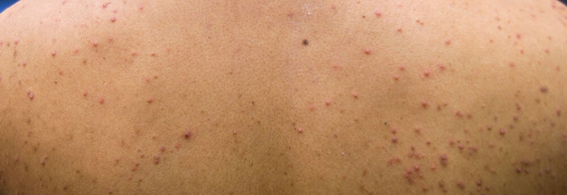 Vanguard Dermatology Pityrosporum Folliculitis identification and treatment What Is Pityrosporum Folliculitis and How to Treat It