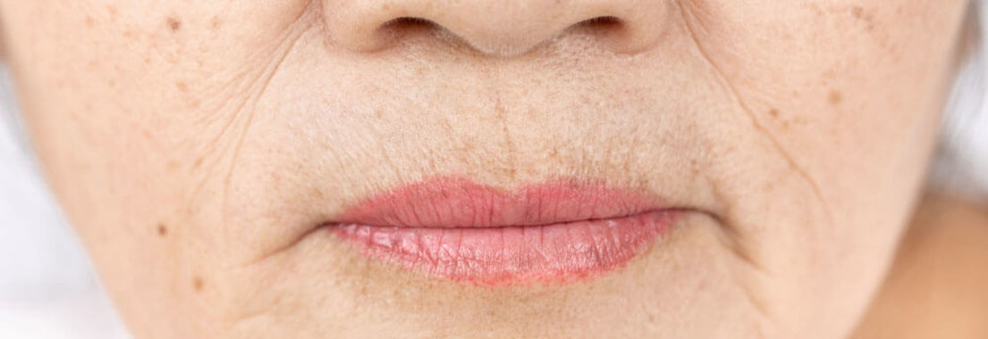 Vanguard Dermatology lip thinning prevention What To Do About Thinning Lips