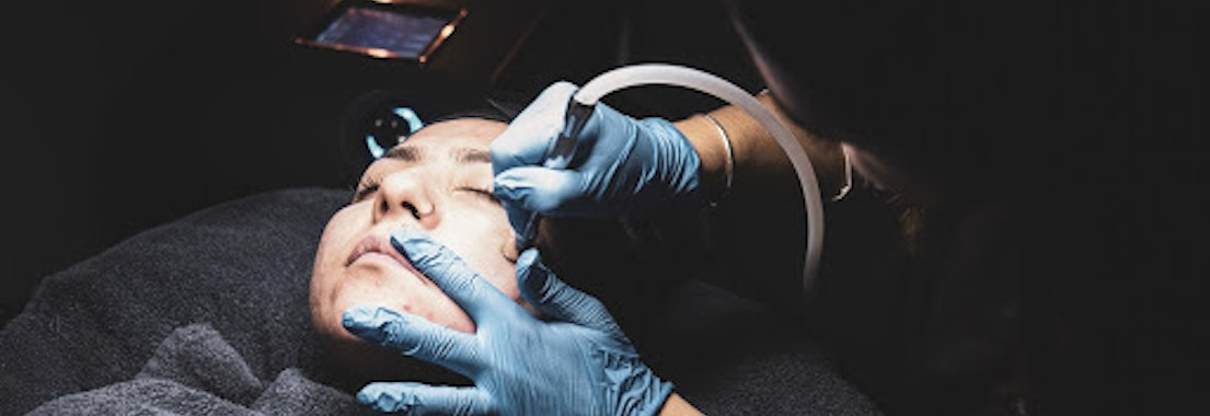 4 Reasons Why Microdermabrasion is So Popular
