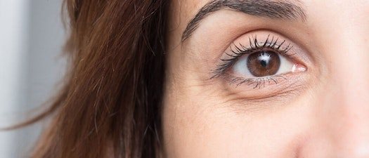 11 Tips for Treating Under Eye Circles