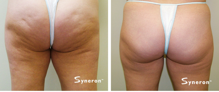 Woman's thighs before and after