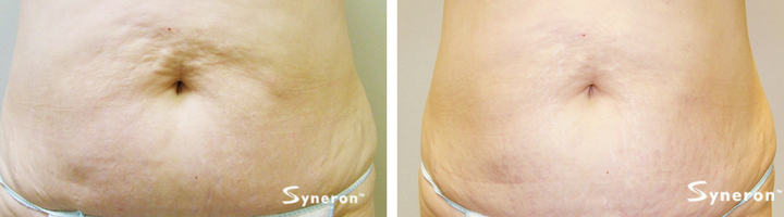 Woman's stomach before and after